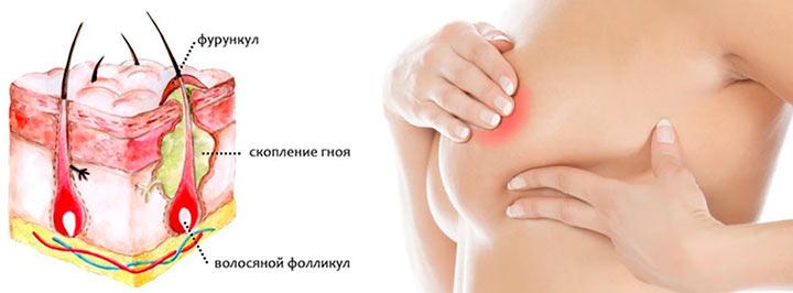 Фурункул на молочной железе лечение