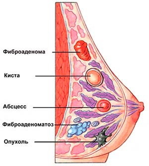 виды образований в груди