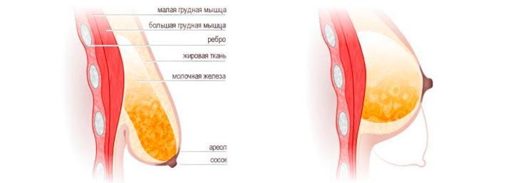 инволюция груди