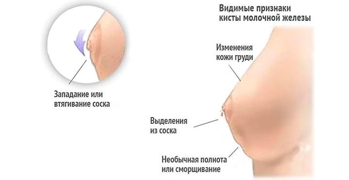 симптомы рака соска