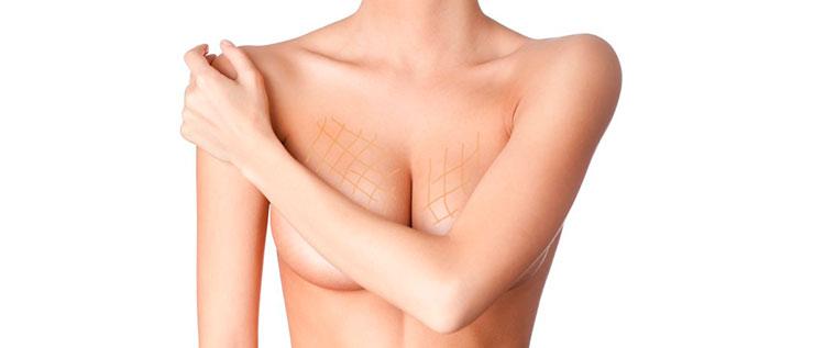 йод для груди