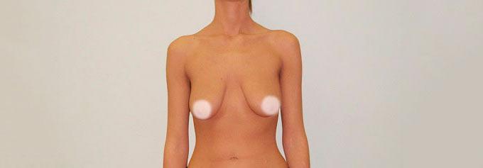 Обвисание молочных желез у девушек