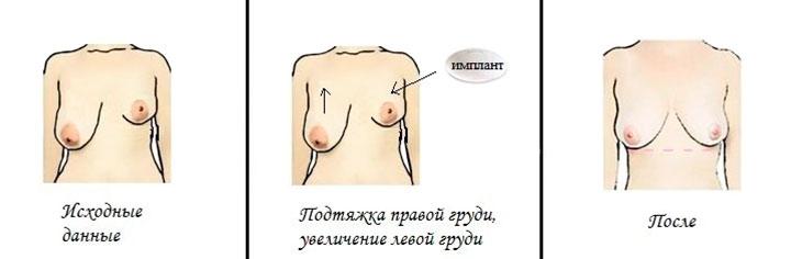 операция для восстановления симметрии груди