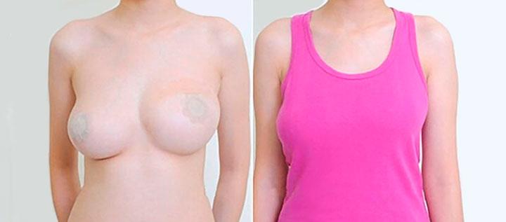 асимметрия груди у женщин