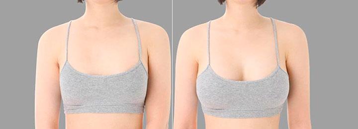 грудь до и после увеличения жиром