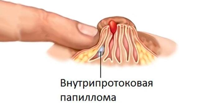Лечение болезни минца народными средствами термостат для холодильника атлант там-125