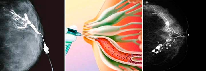 дуктография молочной железы