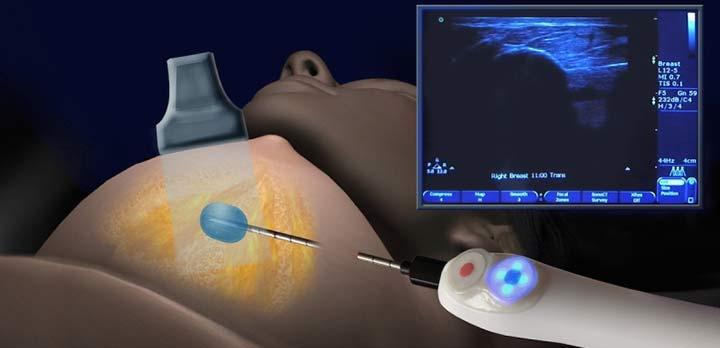 проведение биопсии на молочной железе