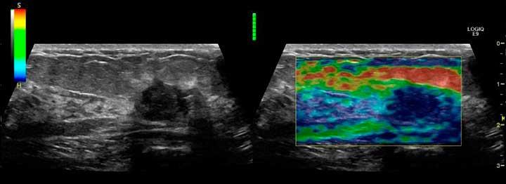 снимок эластографии груди