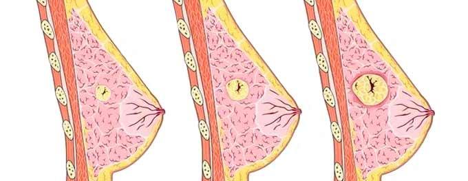 разрастание в молочной железе