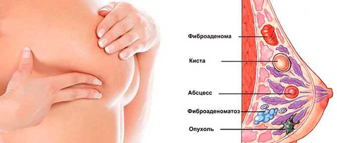 типы образований в груди