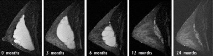 рассасывание гиалуронки в груди