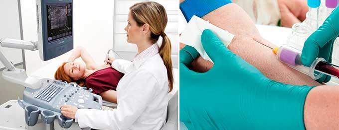 узи и анализ крови