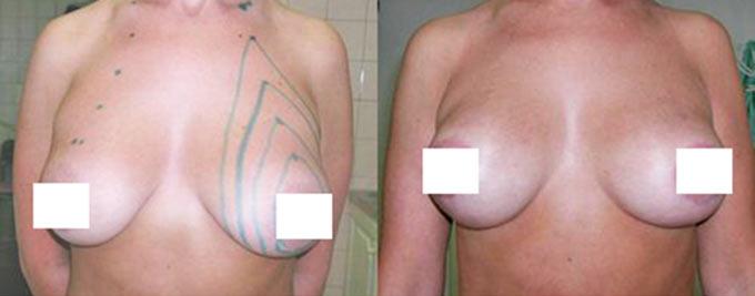 увеличение груди нитями фото