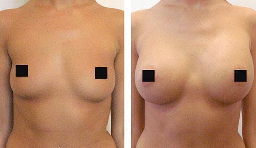 до и после увеличения груди 3