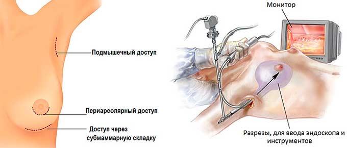 увеличение груди с эндоскопом
