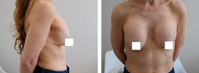 грудь с контрактурой