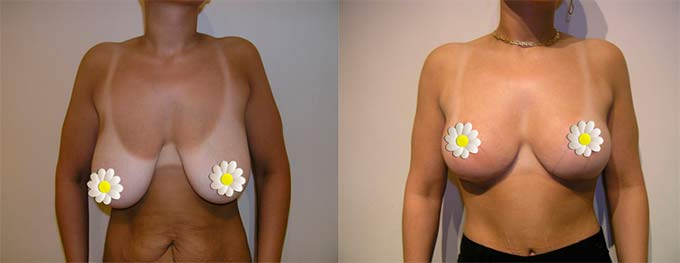 до и после подтяжки груди