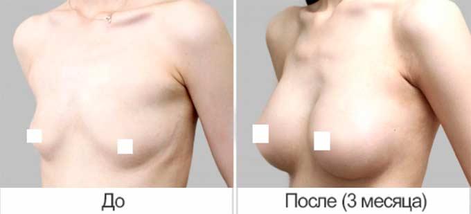 грудь после увеличения