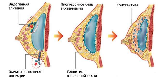 развитие капсулярной контрактуры от импланта