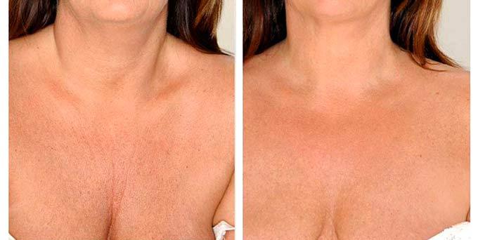 до и после массажа груди