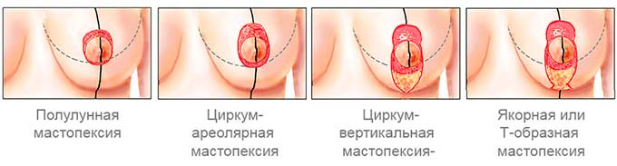виды мастопексии