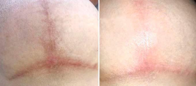 заживление шрамов после мастопексии