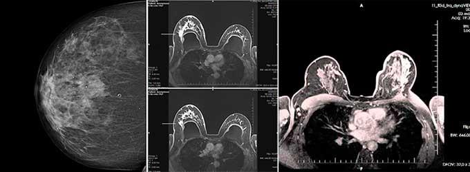 диагностика состояния груди