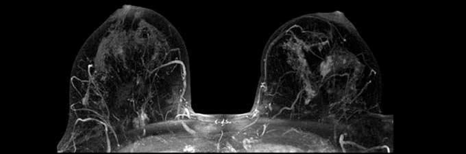 снимок рака