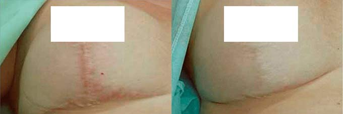 до и после коррекции швов