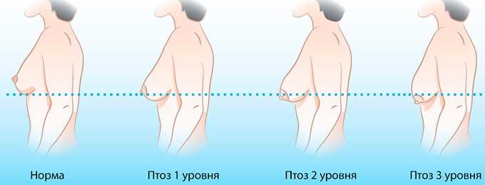 стадии птоза грудной железы