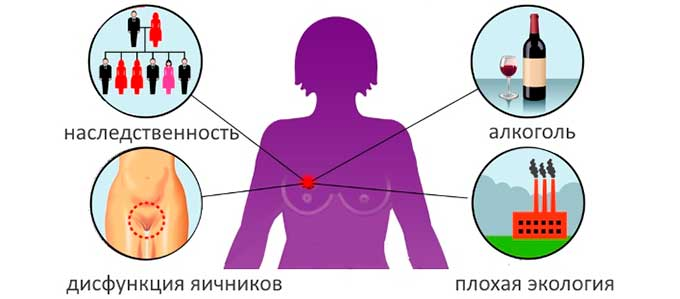 Причины развития аденоза груди
