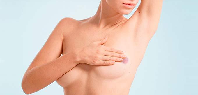 осмотр молочной железы