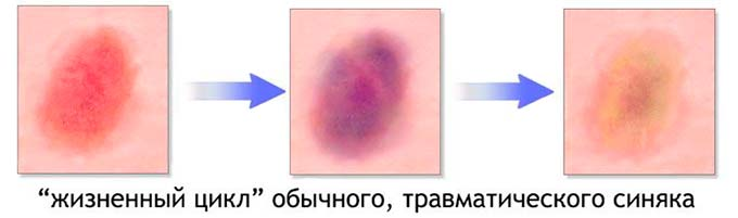 стадии проявления синяка