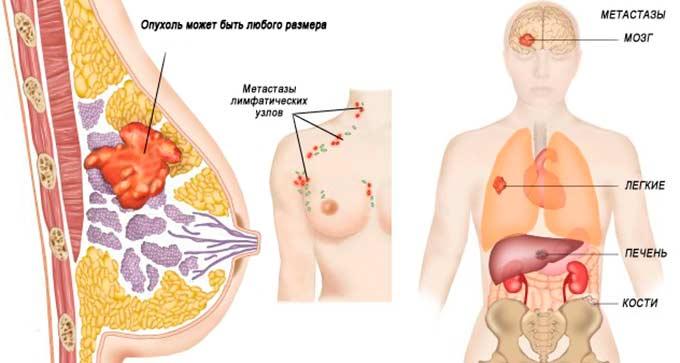 последняя стадия рака груди с метастазами