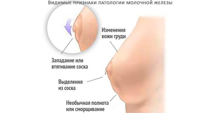 видимые признаки патологии молочной железы