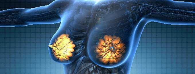 Появление патологического образования в груди