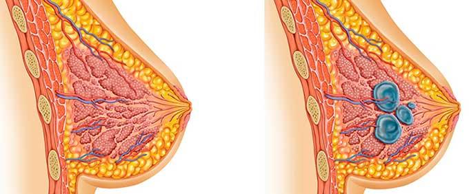 Поликистоз в молочной железе