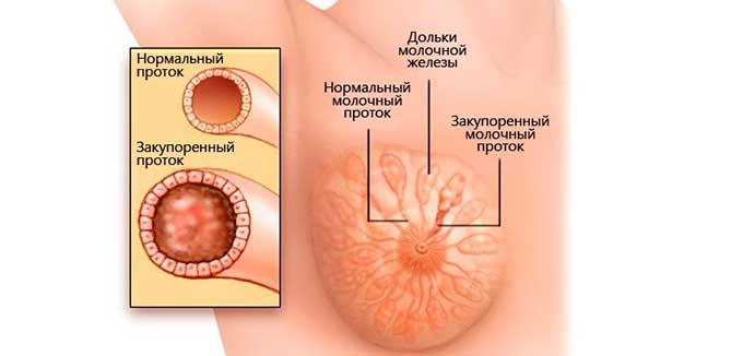 расширенные протоки в молочных железах