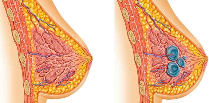 гиперплазия груди