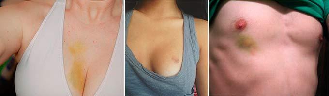 Ушибы в области груди