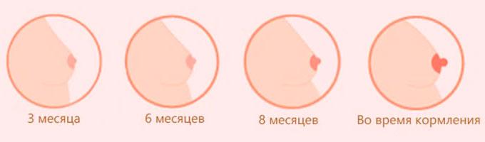 Изменения соском на протяжении беременности