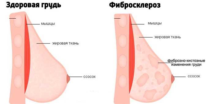 Фибросклероз груди