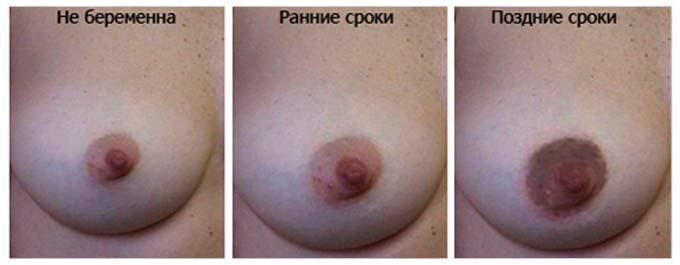 Изменение цвета сосков до и после беременности