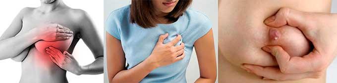 Симптомы эктазии груди