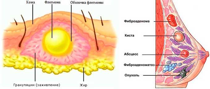 Появление образований в молочных железах