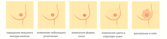Симптомы патологии молочных желез
