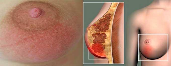 Сильное воспаление тканей молочной железы