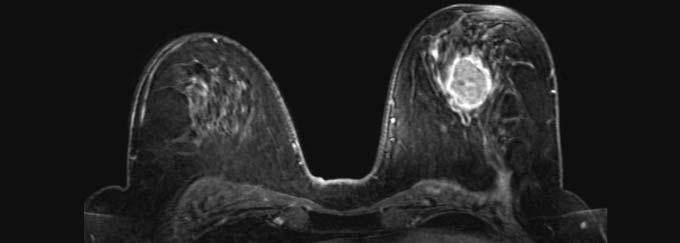 КТ снимок уплотнения в груди