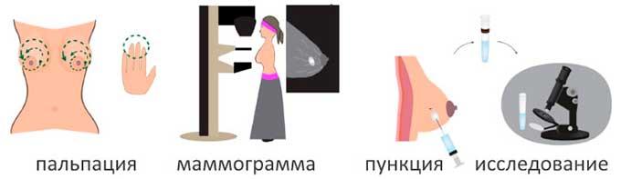 Схема диагностики кист молочных желез